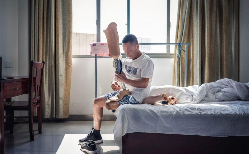 双腿的残疾已难治愈