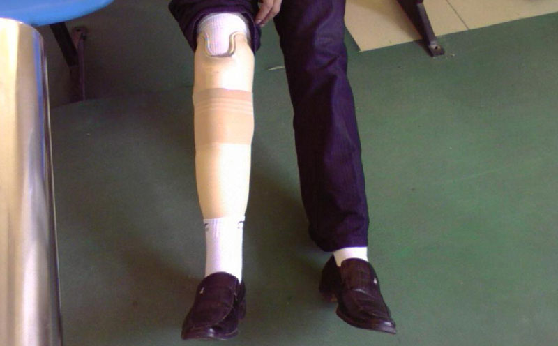 交通事故致使人伤残后的假肢费用